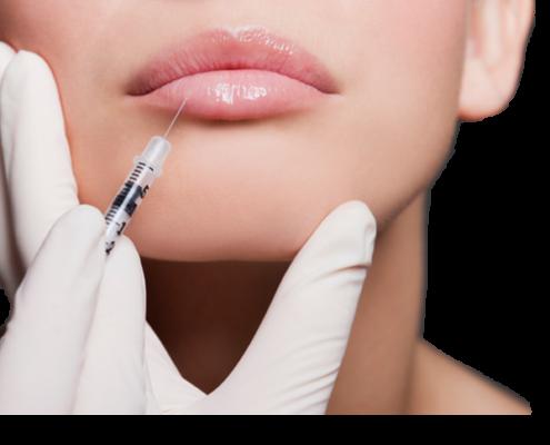 Botox fillers läppar